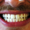 Thumbnail image for Why I Trust My Teeth to Thailand