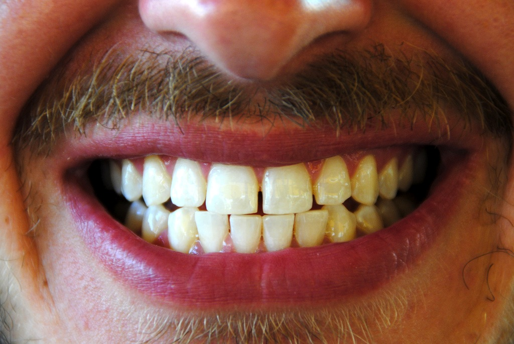 Is Dental Tourism In Thailand A Good Idea